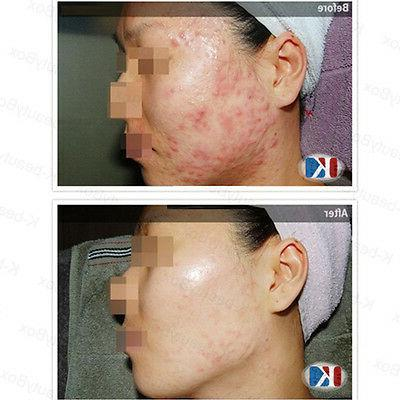 Cleansing 150ml Acne